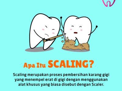 Apa itu Scaling gigi?